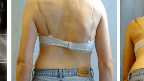 My Journey with Scoliosis